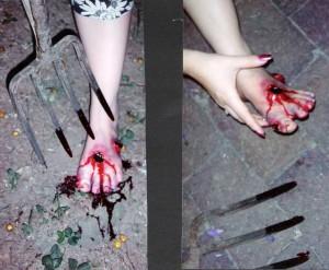 Fork through foot